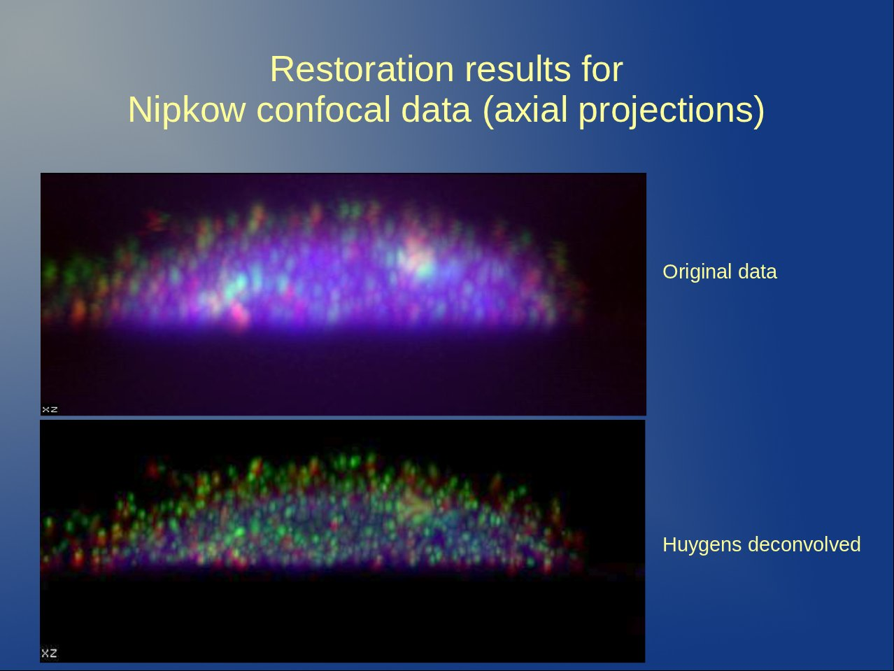 Top picture: XY projections and bottom picture: YZ, XZ projections. Original data as acquired in a Nipkow Disk Microscope shown next to the same image after applying Huygens Deconvolution. The red and green signals are clearly separated much more after the restoration. Calculating colocalization in the original data would have caused fake colocalization levels. Data courtesy Dr. Kozubek, Brno, Czech republic, FP6 3DGenome Project