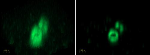 Axial MIP projection of the complete STED z-stack, before (left) and after deconvolution with Huygens (right). Data used by permission from Dr. Grazvydas Lukinavicius, EPFL, Lausanne, Switzerland
