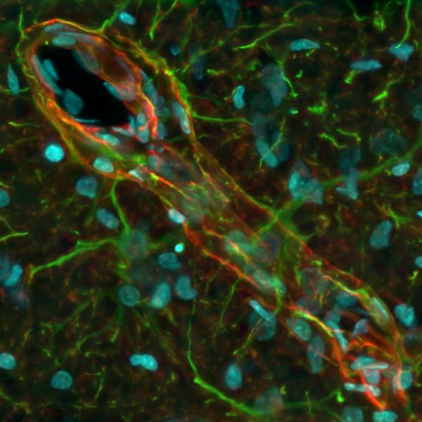 Huygens deconvolved and MIP rendered epifluorescence Z stack of part of a mouse brain. The image shows aquaporin 4 (red) as individual astrocytic end-feet along a blood vessel. Thanks to deconvolution, GFAP (green) can be colocalized with AQ4 in small areas, but the end-feet and arms of astrocytes can be identified as distinguishable structures in terms of protein expression.