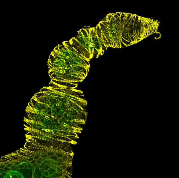 The image represents a Z-stack of 116 sections showing a series of developing Drosophila oocytes with actin in yellow (Phalloidin) and the nuclear envelope of the nurse cells in green (GFP-Tm1).