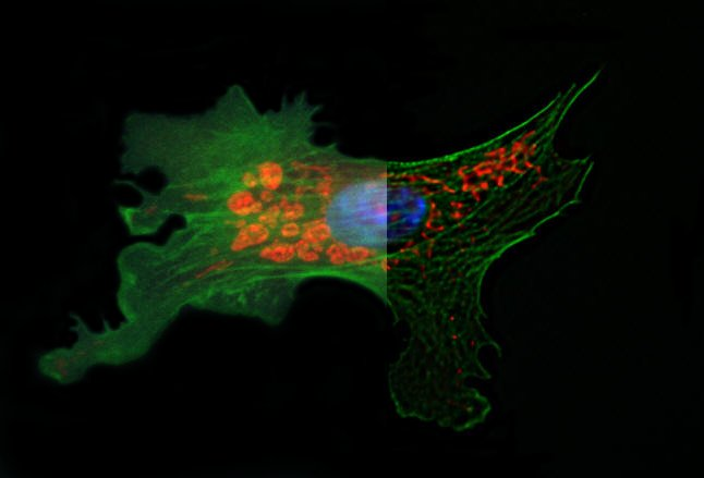 Epifluorescence image of a Bovine pulmonary artery endothelial cell (Invitrogen Floucells #1 prepared slide) deconvolved with an experimental multi-channel point spread function. The before and after deconvolution images were merged side by side to display the power of deconvolution. Courtesy of Drs. Jeff Tucker and Holly Ruthledge, Fluorescence Microscopy and Imaging Center&Microarray Group, NIEHS - NIH, USA.
