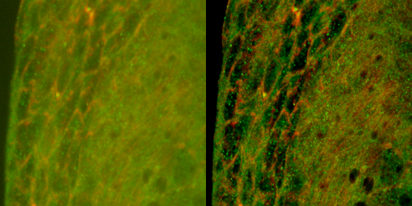 Left: a slice of the original data, imaged using an Andor Revolution spinning disc confocal microscope.